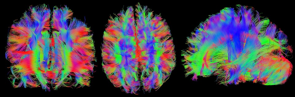 MRI cerebro